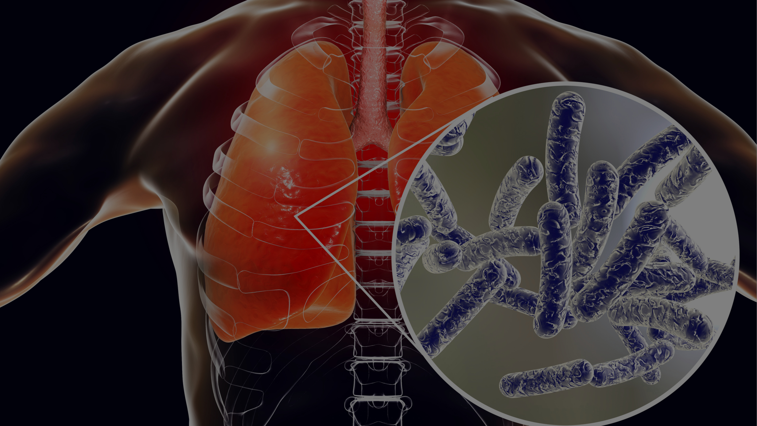 What Else Do You Need To Know About Legionella?